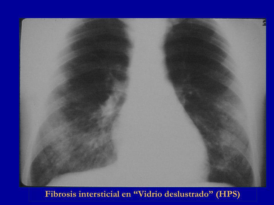 Fibrosis intersticial en Vidrio deslustrado (HPS)