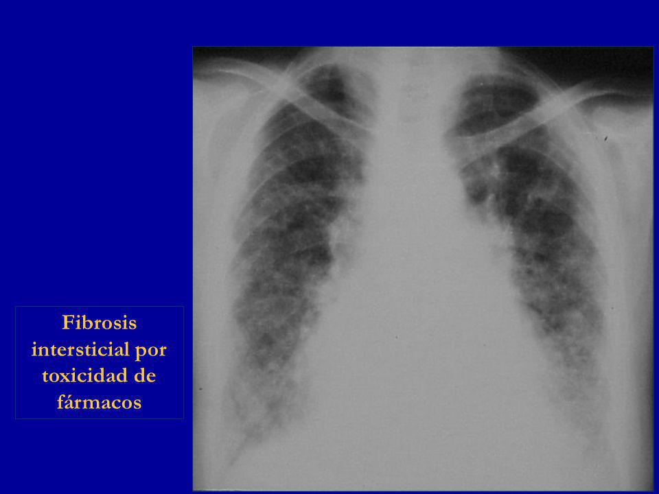 Fibrosis intersticial por toxicidad de fármacos