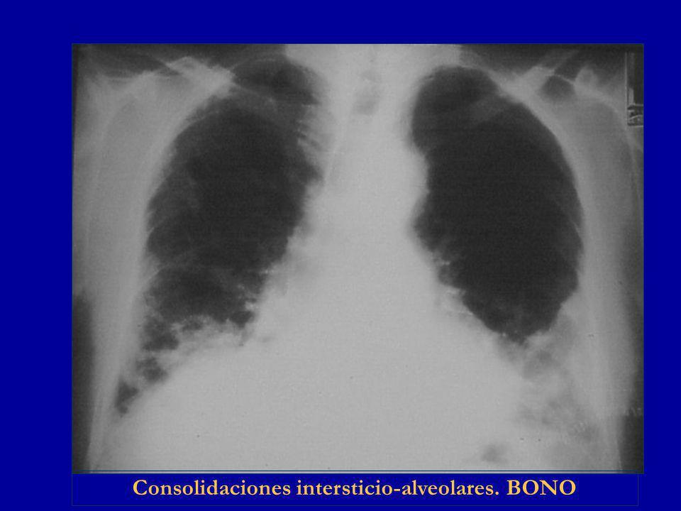 Consolidaciones intersticio-alveolares. BONO