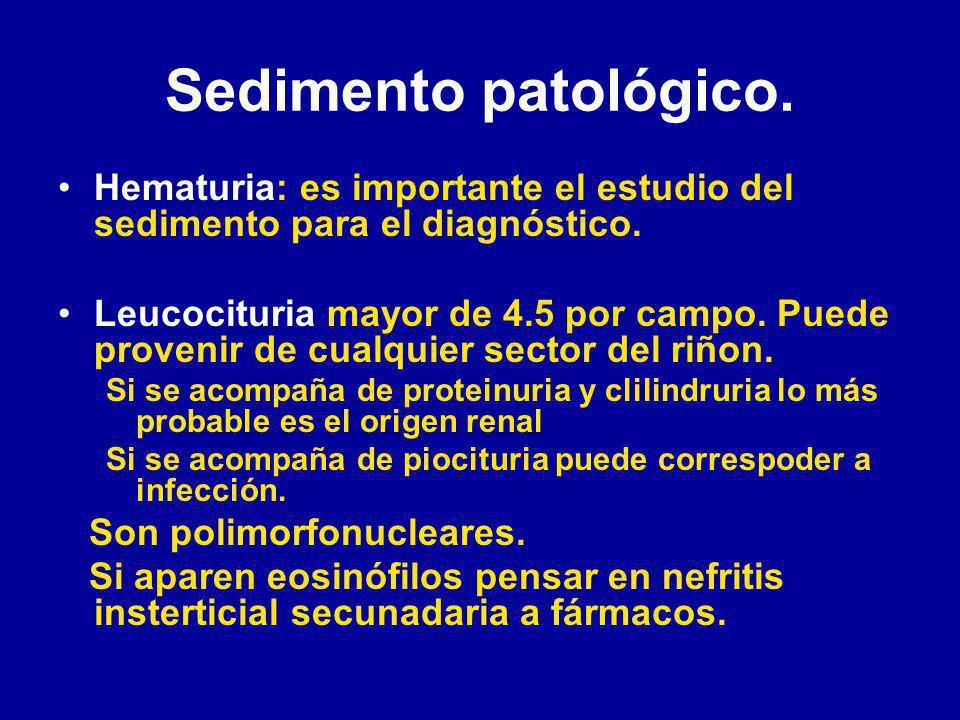 Sedimento patológico. Hematuria: es importante el estudio del sedimento para el diagnóstico.