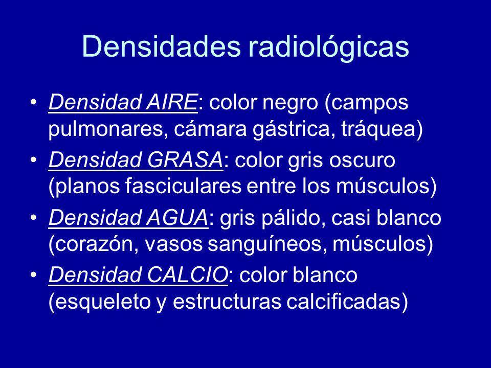 Densidades radiológicas