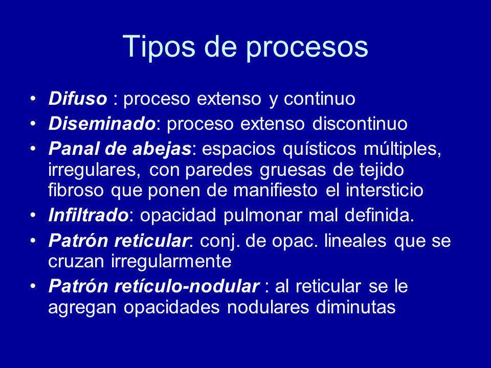Tipos de procesos Difuso : proceso extenso y continuo