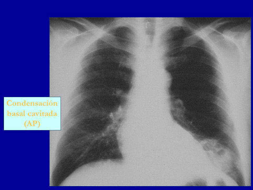 Condensación basal cavitada (AP)