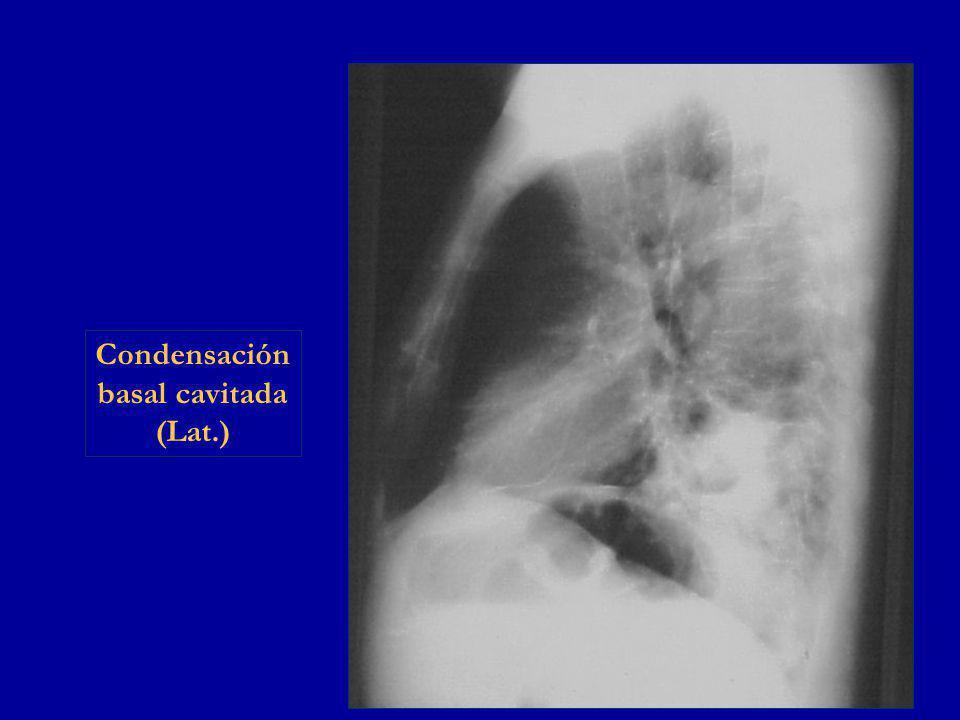 Condensación basal cavitada (Lat.)