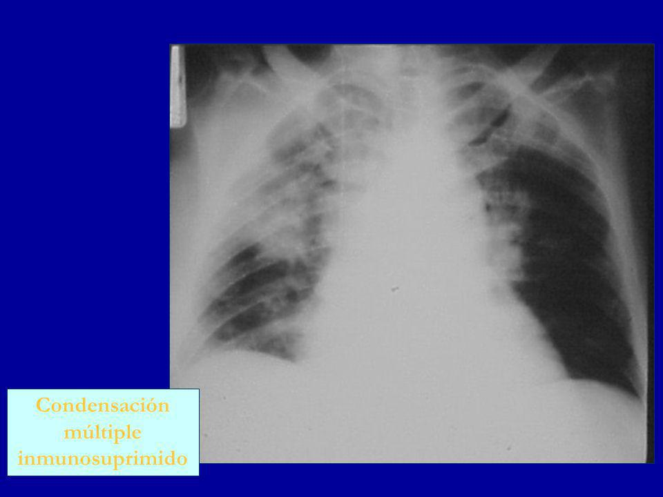Condensación múltiple inmunosuprimido