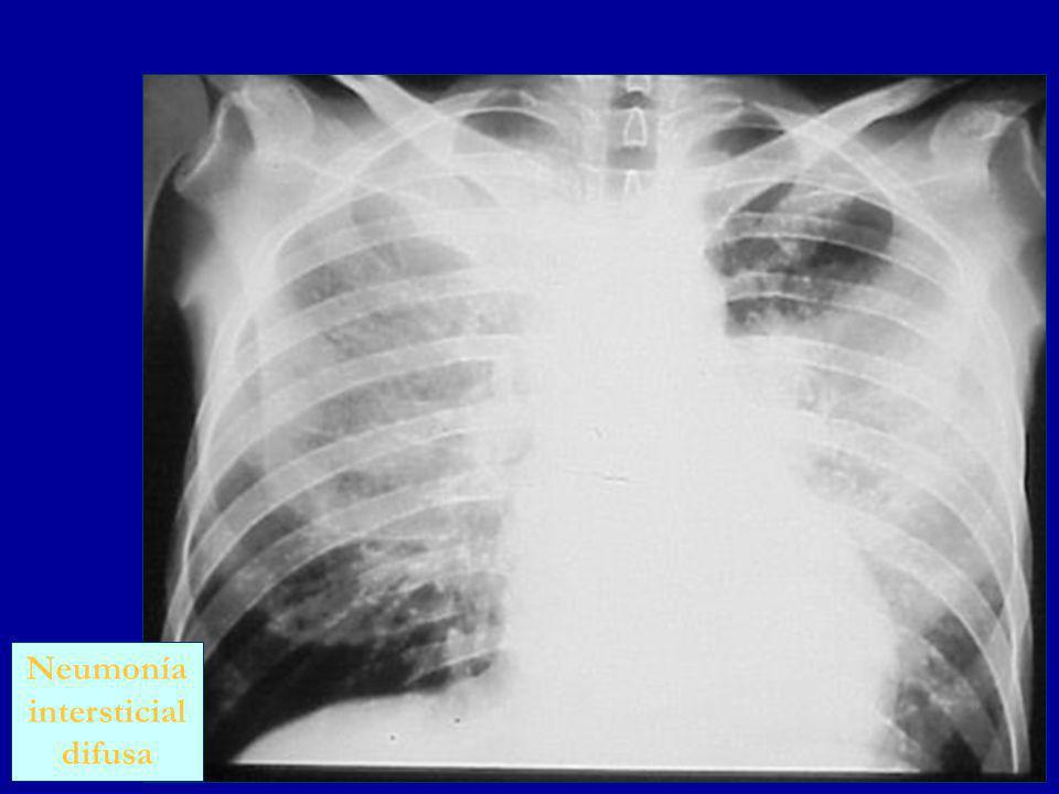 Neumonía intersticial difusa