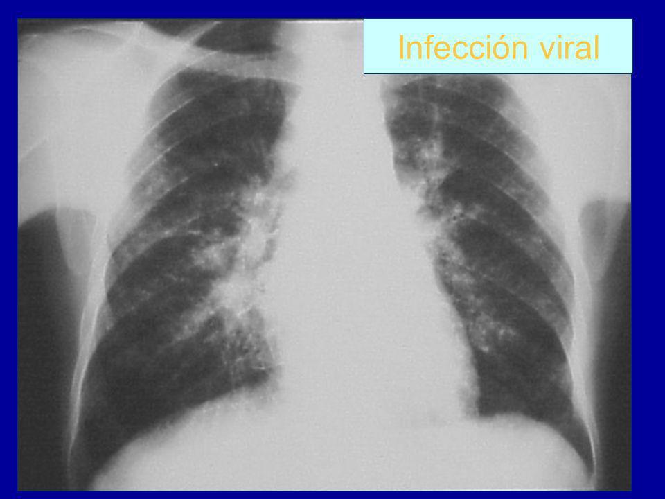 Infección viral