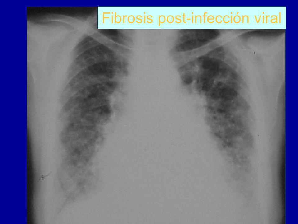 Fibrosis post-infección viral