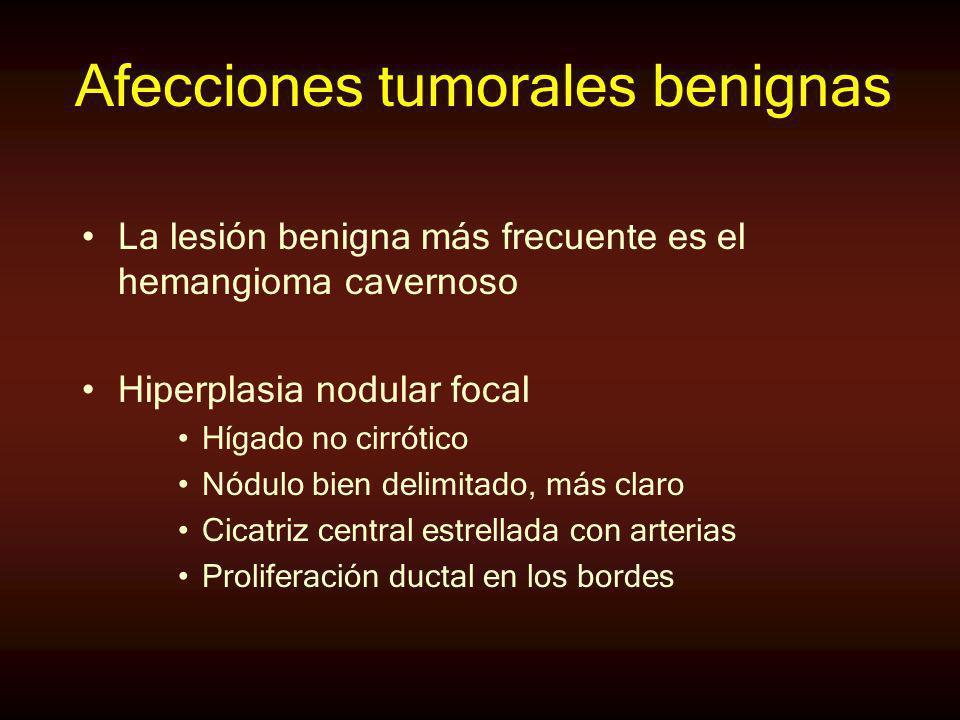 Afecciones tumorales benignas