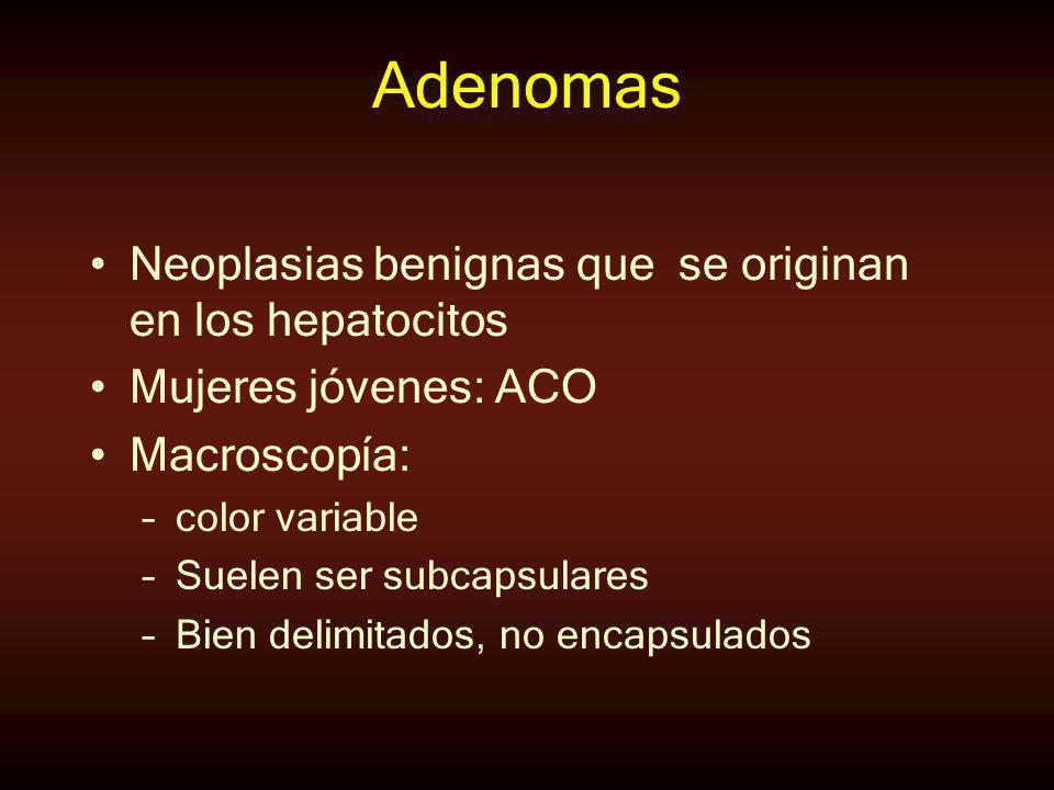 Adenomas Neoplasias benignas que se originan en los hepatocitos