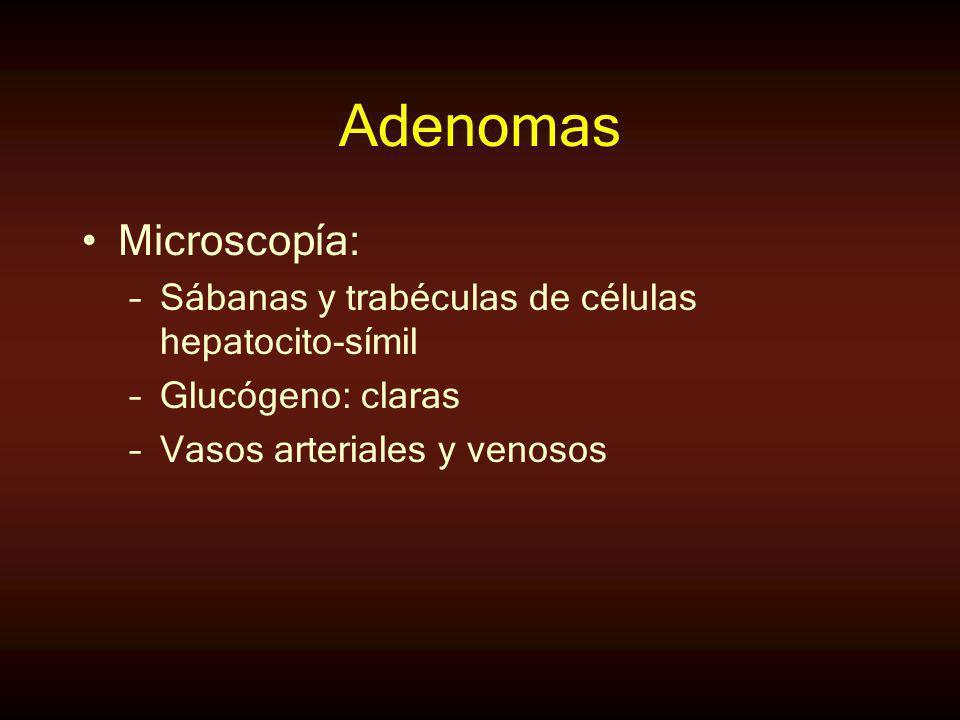Adenomas Microscopía: Sábanas y trabéculas de células hepatocito-símil