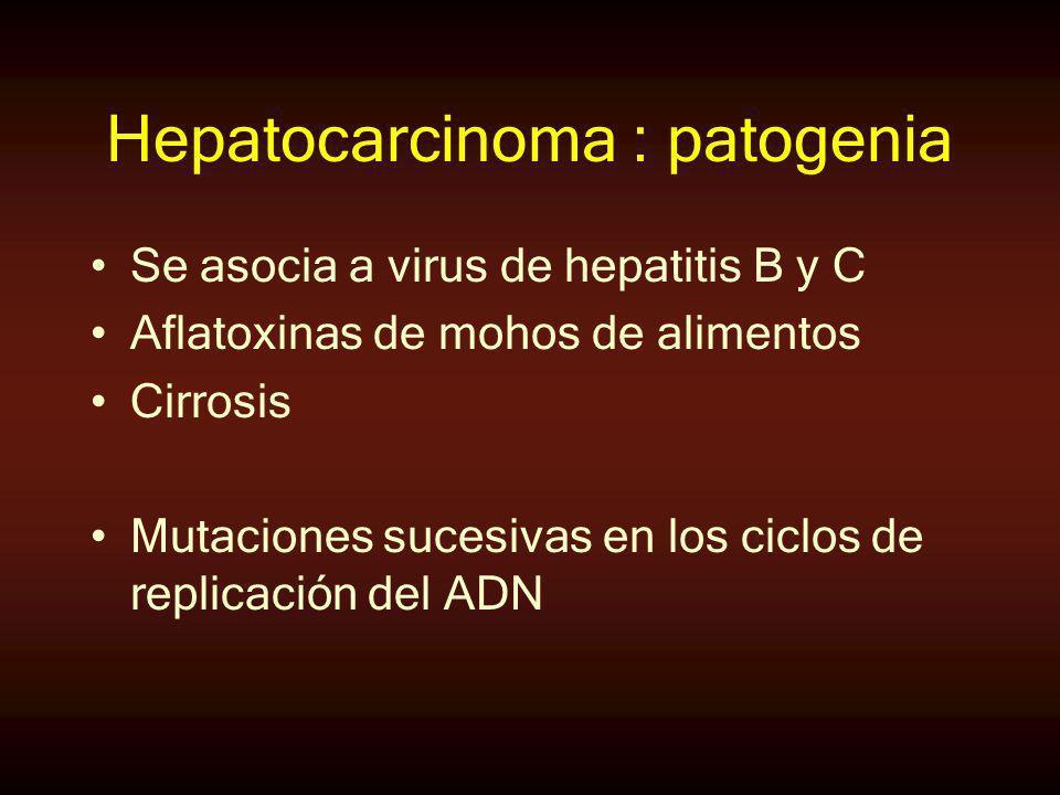 Hepatocarcinoma : patogenia