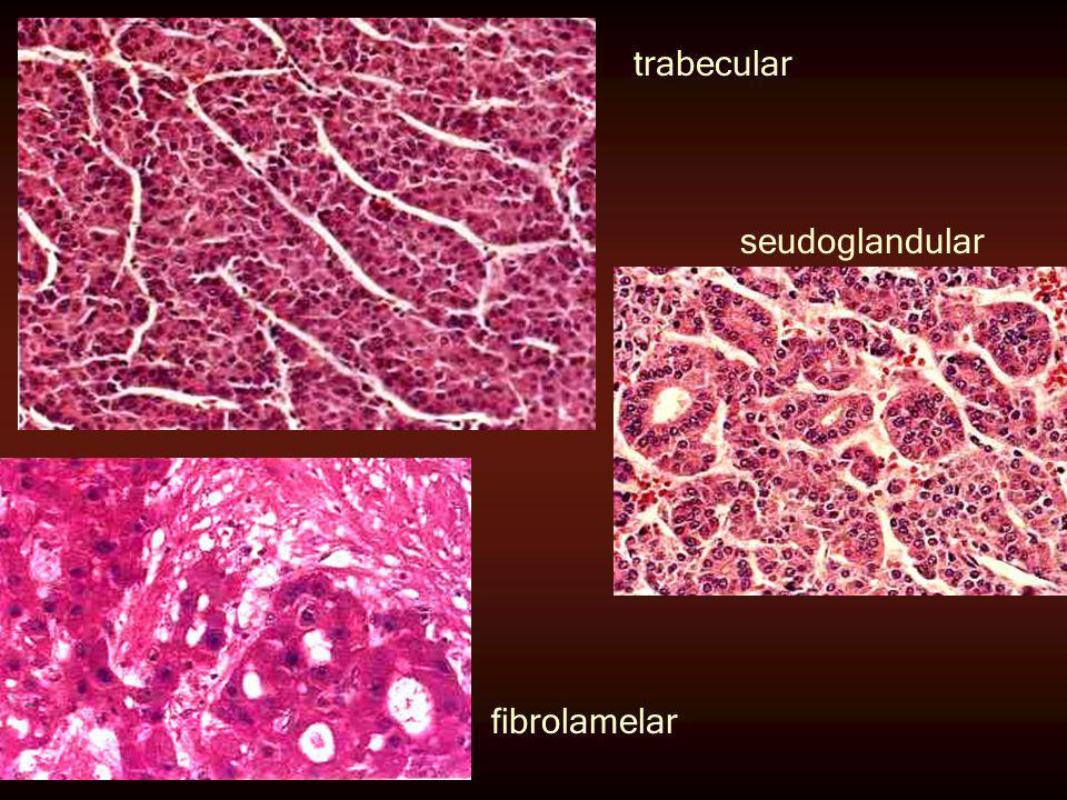 trabecular seudoglandular fibrolamelar