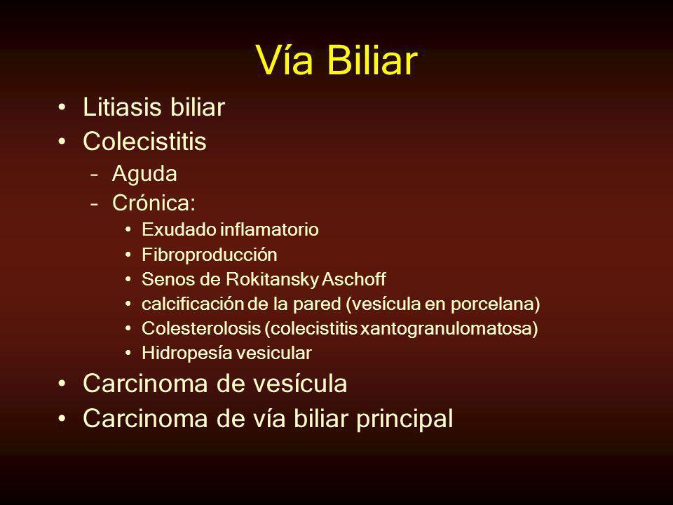 Vía Biliar Litiasis biliar Colecistitis Carcinoma de vesícula
