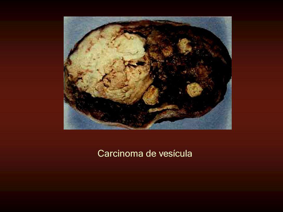 Carcinoma de vesícula