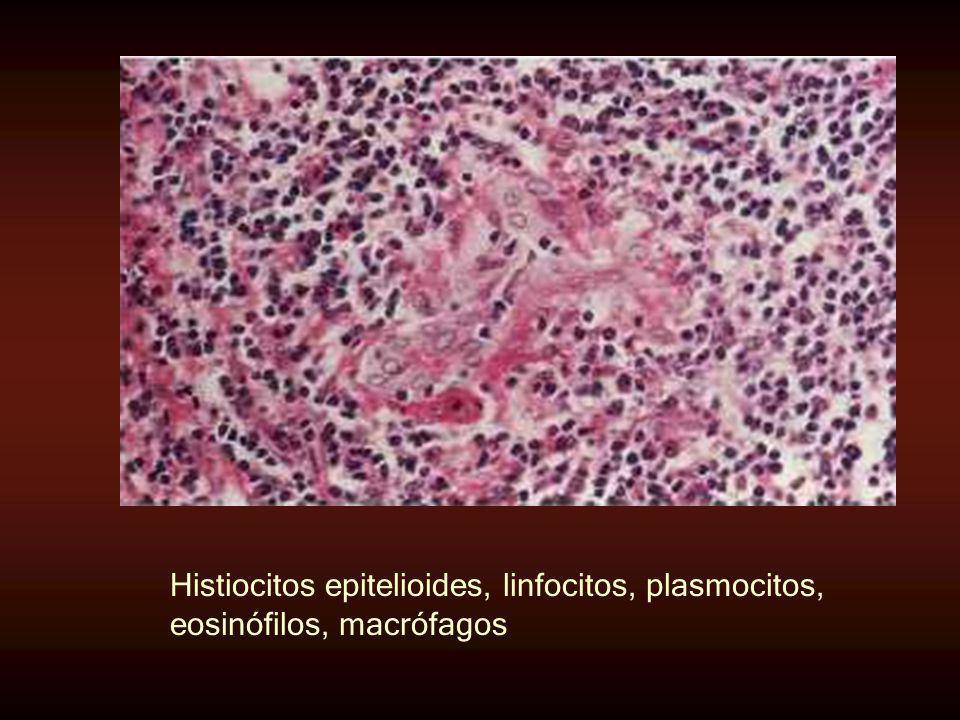 Histiocitos epitelioides, linfocitos, plasmocitos, eosinófilos, macrófagos