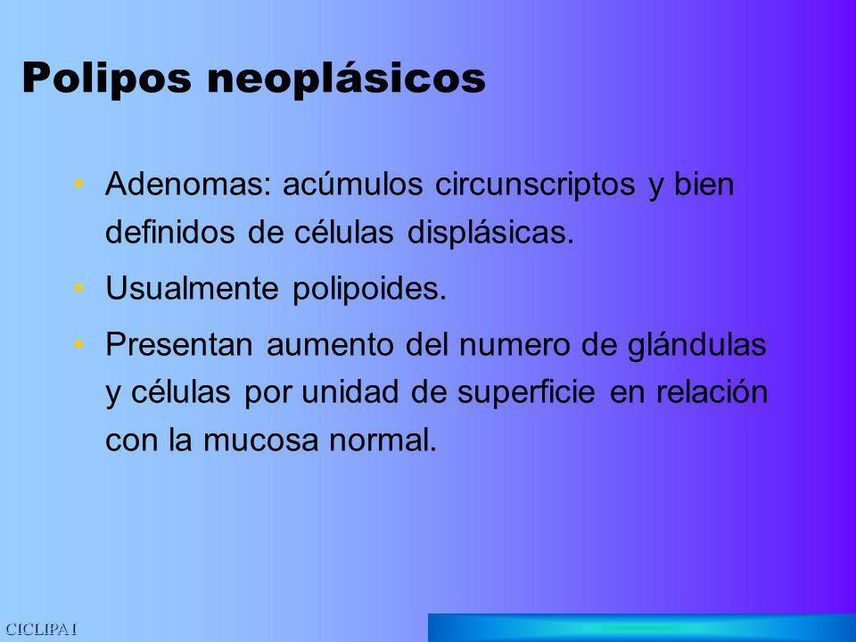Polipos neoplásicos Adenomas: acúmulos circunscriptos y bien definidos de células displásicas. Usualmente polipoides.