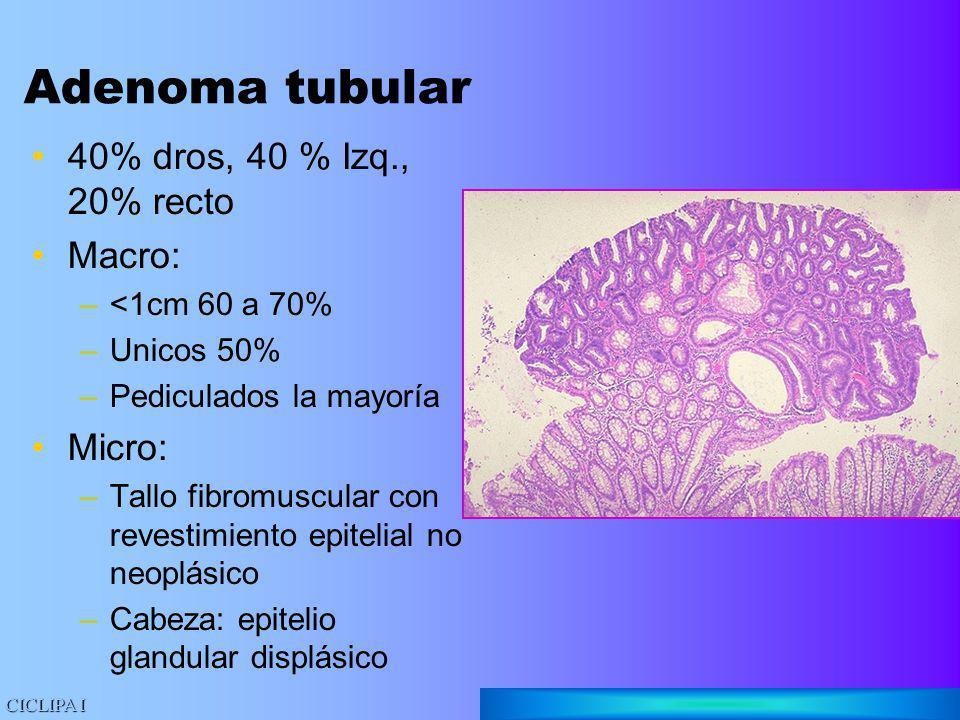 Adenoma tubular 40% dros, 40 % Izq., 20% recto Macro: Micro: