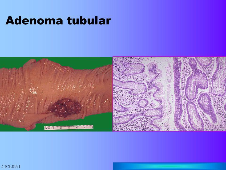 Adenoma tubular CICLIPA I