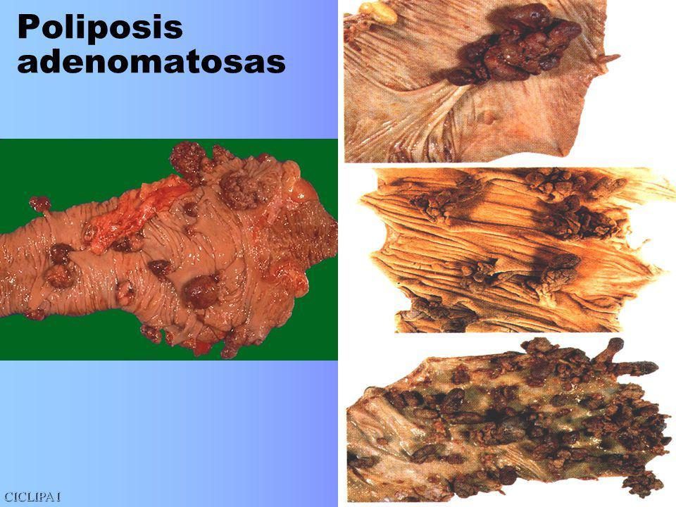 Poliposis adenomatosas