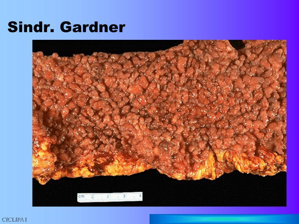 Sindr. Gardner CICLIPA I