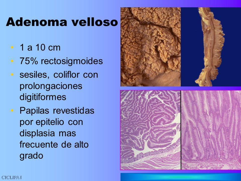 Adenoma velloso 1 a 10 cm 75% rectosigmoides