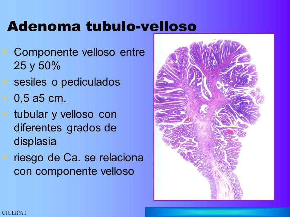Adenoma tubulo-velloso