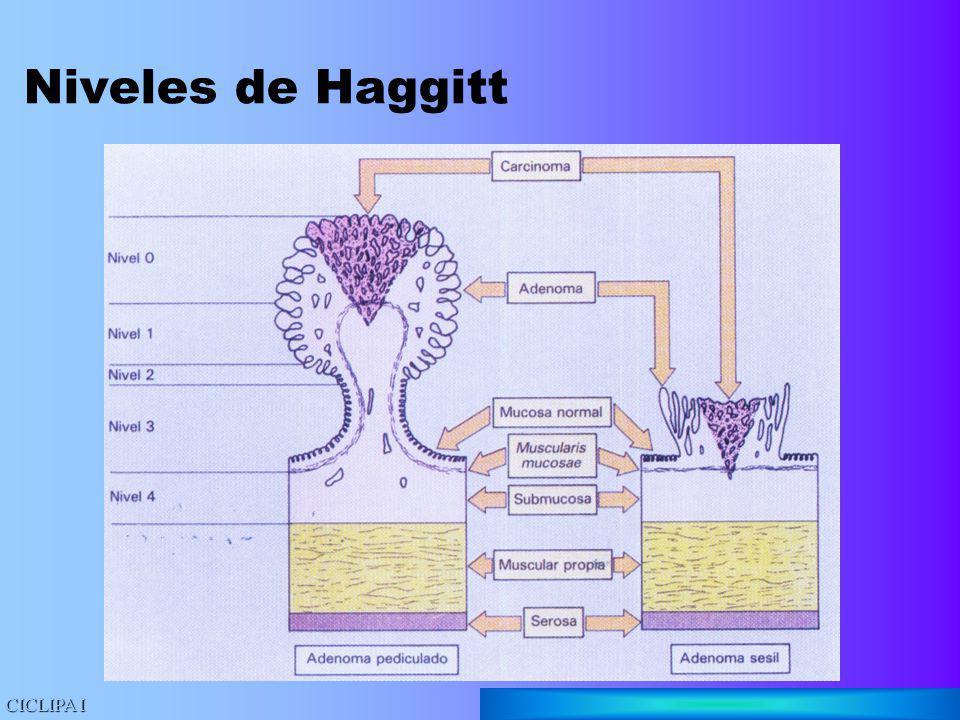 Niveles de Haggitt CICLIPA I