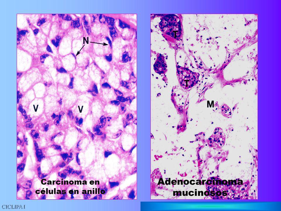 Adenocarcinoma mucinosos