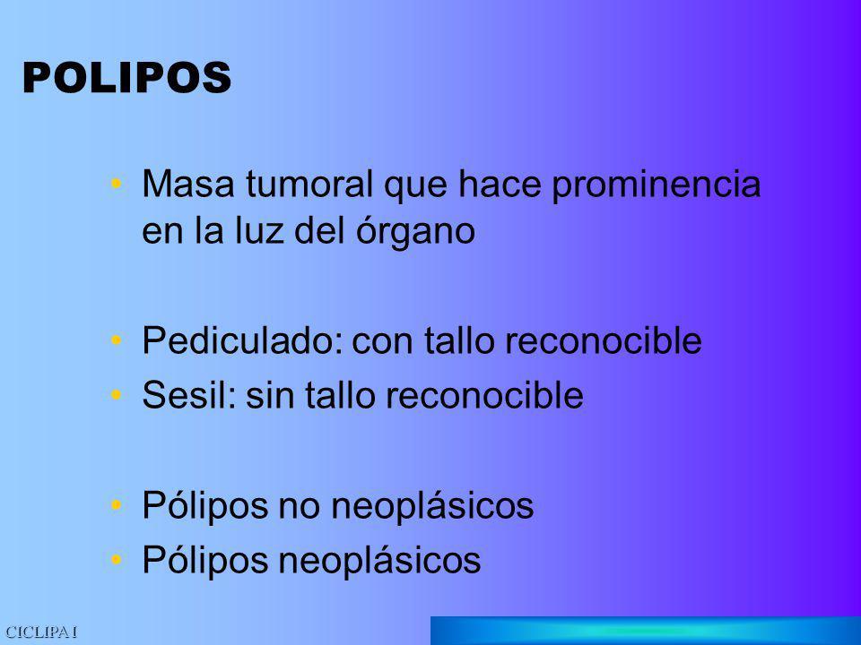 POLIPOS Masa tumoral que hace prominencia en la luz del órgano