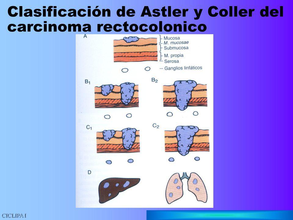 Clasificación de Astler y Coller del carcinoma rectocolonico