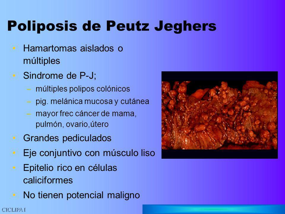 Poliposis de Peutz Jeghers
