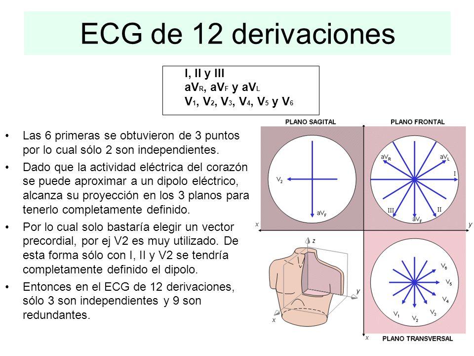 ECG de 12 derivaciones I, II y III aVR, aVF y aVL