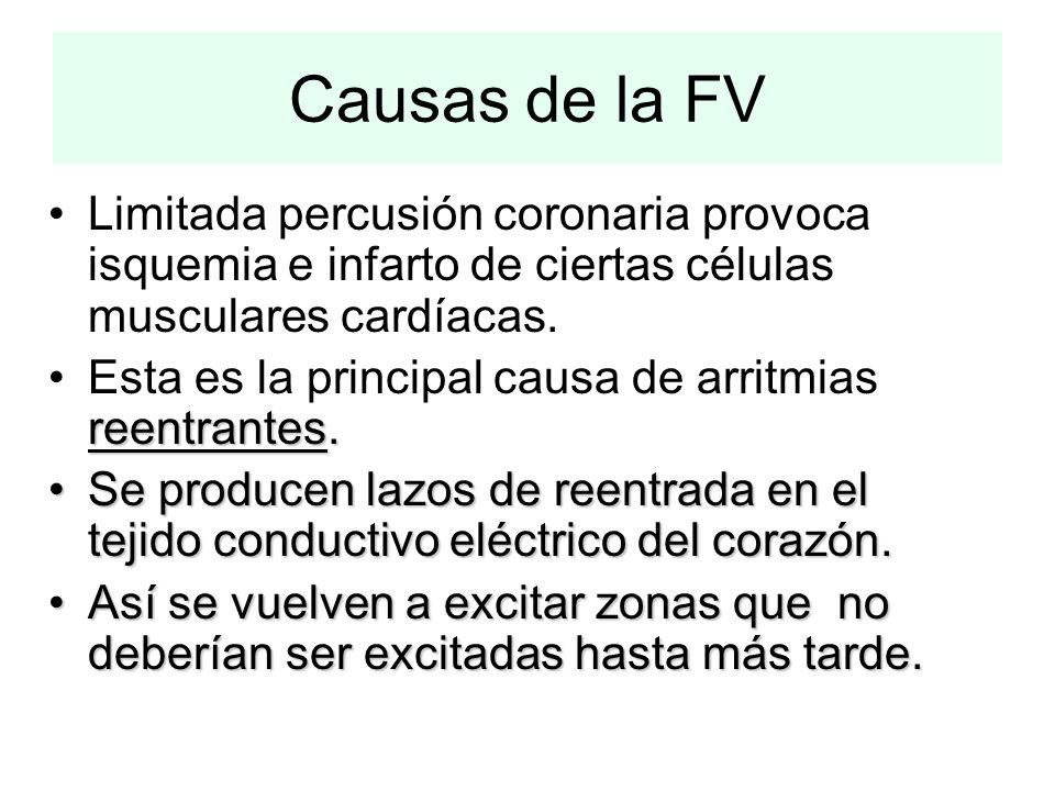 Causas de la FV Limitada percusión coronaria provoca isquemia e infarto de ciertas células musculares cardíacas.