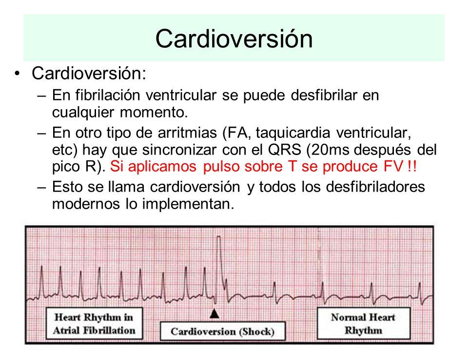 Cardioversión Cardioversión: