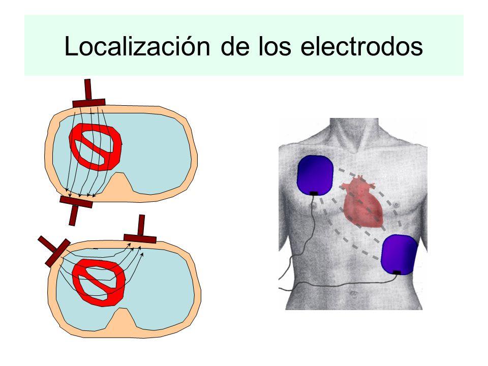 Localización de los electrodos