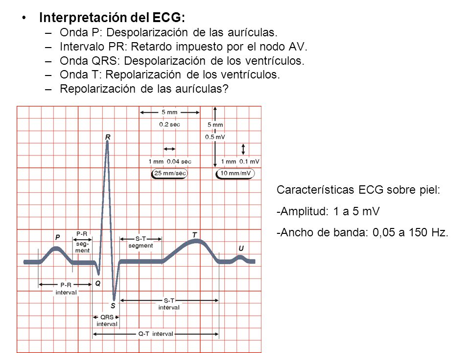 Interpretación del ECG: