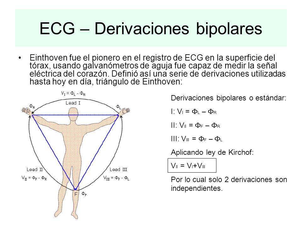 ECG – Derivaciones bipolares
