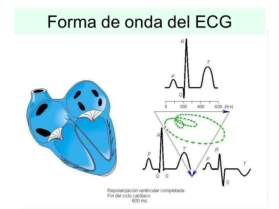 Forma de onda del ECG
