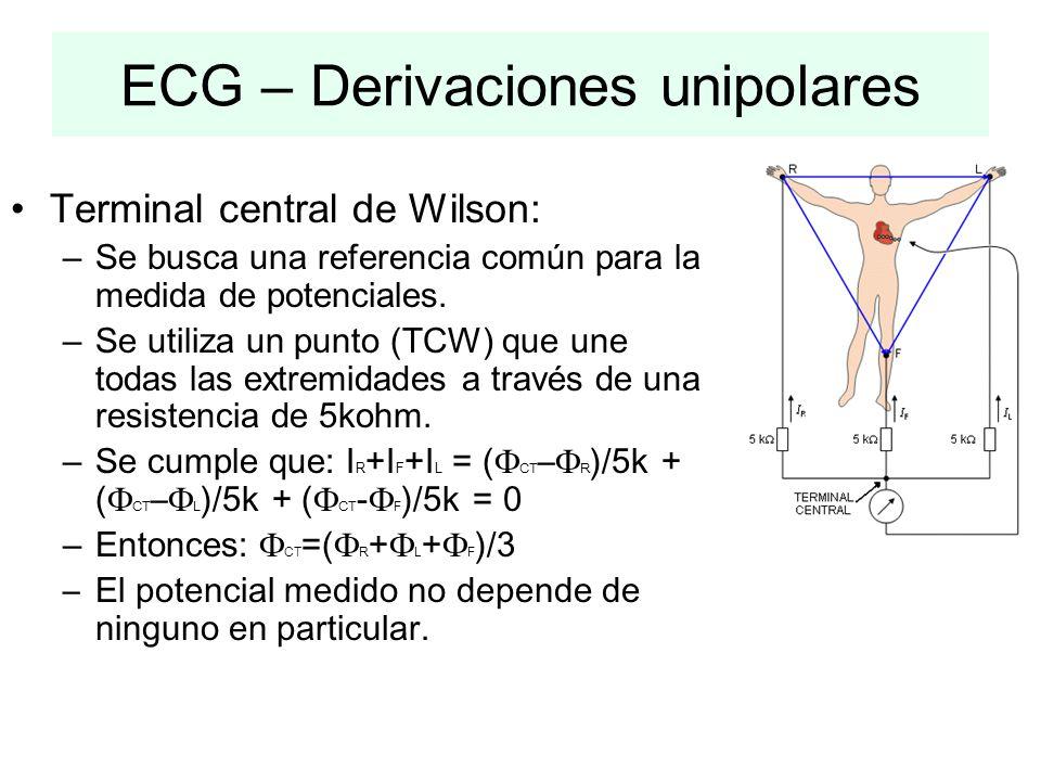 ECG – Derivaciones unipolares