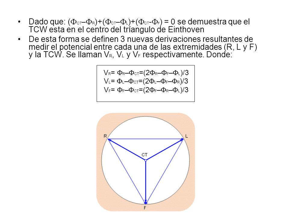 Dado que: (FCT–FR)+(FCT–FL)+(FCT-FF) = 0 se demuestra que el TCW esta en el centro del tríangulo de Einthoven