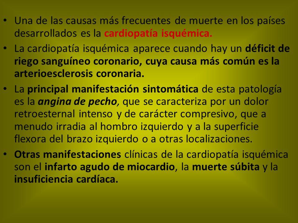 Una de las causas más frecuentes de muerte en los países desarrollados es la cardiopatía isquémica.