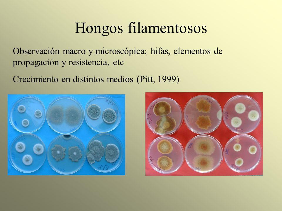 Hongos filamentosos Observación macro y microscópica: hifas, elementos de propagación y resistencia, etc.