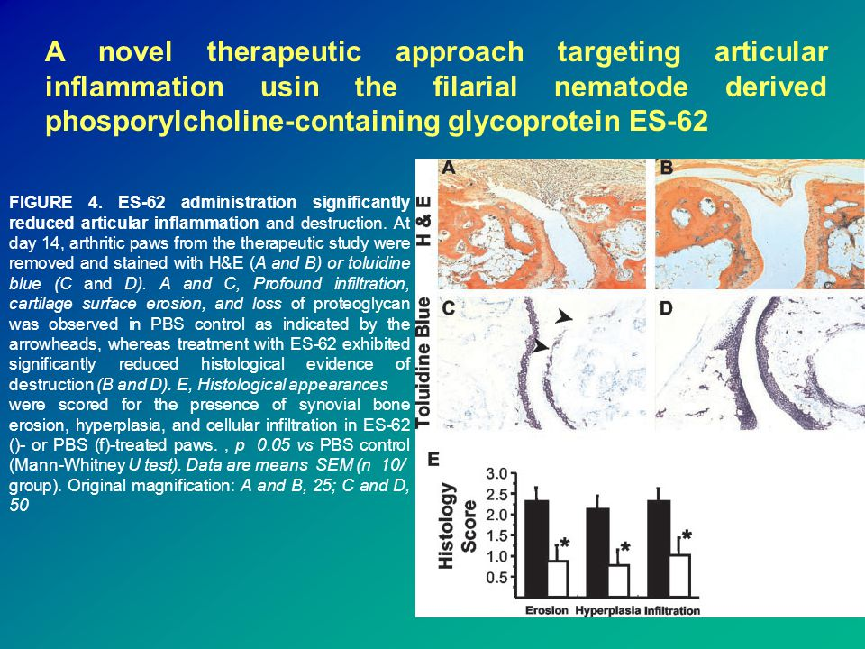 A novel therapeutic approach targeting articular inflammation usin the filarial nematode derived phosporylcholine-containing glycoprotein ES-62