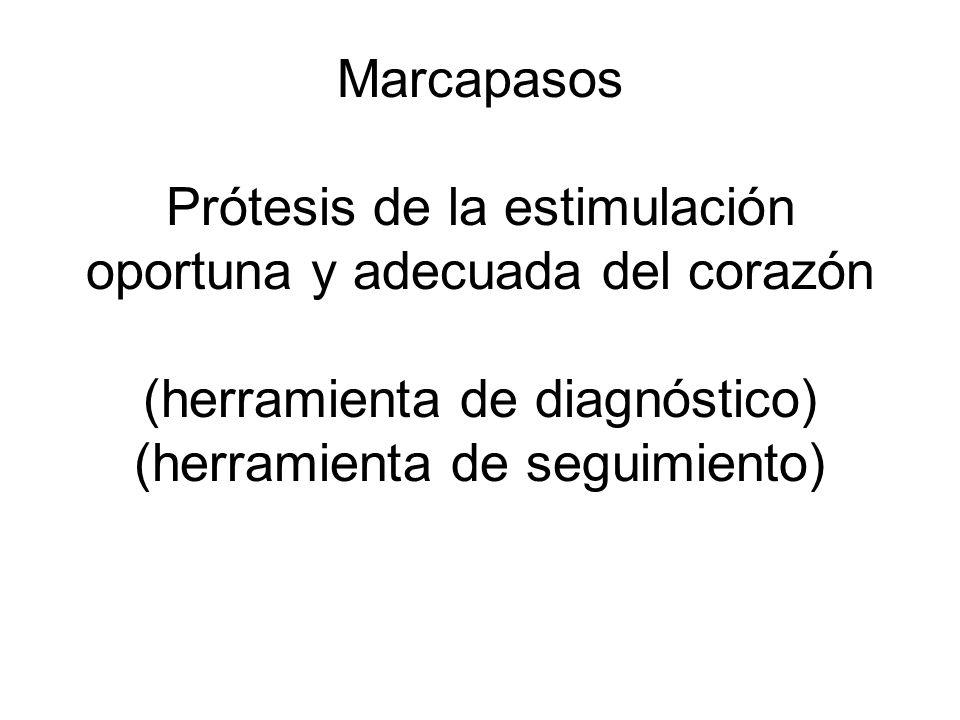 Marcapasos Prótesis de la estimulación oportuna y adecuada del corazón (herramienta de diagnóstico) (herramienta de seguimiento)