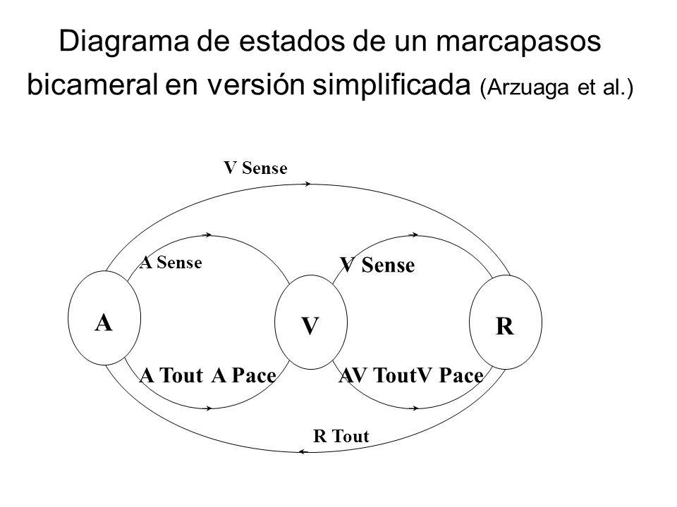 Diagrama de estados de un marcapasos bicameral en versión simplificada (Arzuaga et al.)