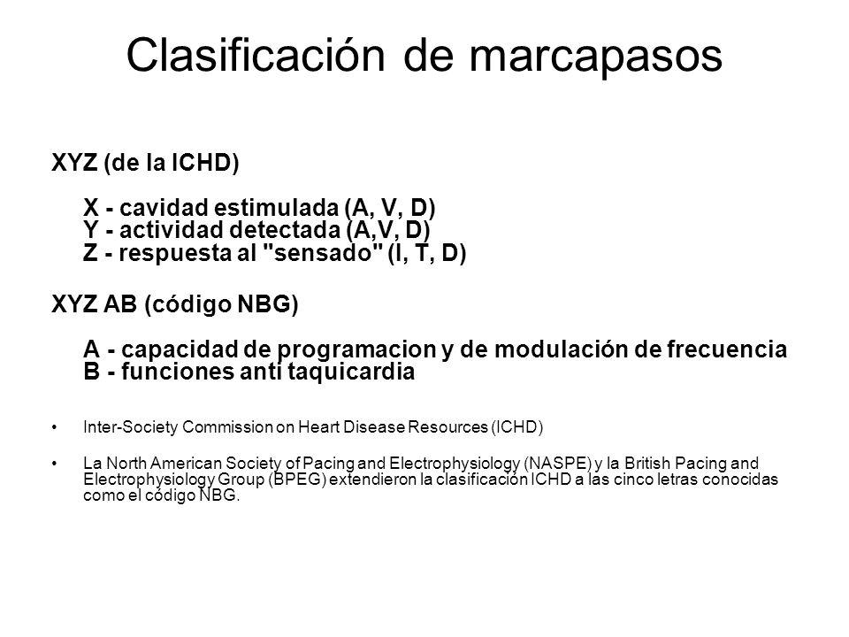 Clasificación de marcapasos