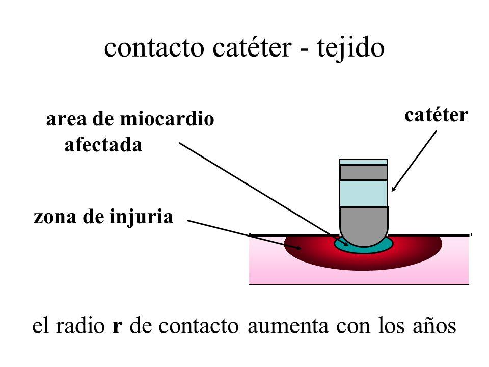 contacto catéter - tejido