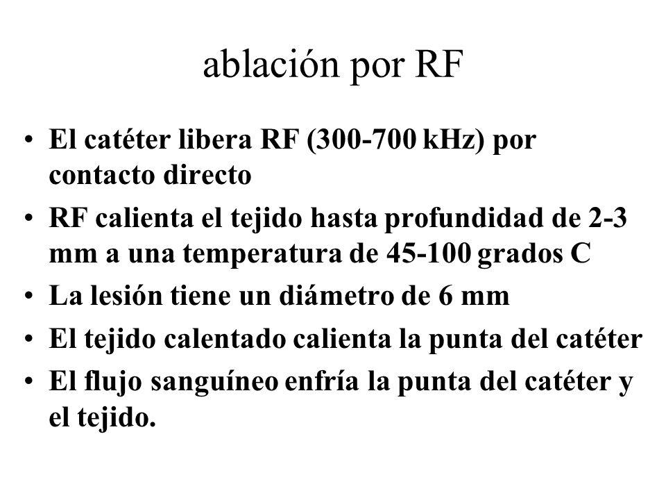 ablación por RF El catéter libera RF (300-700 kHz) por contacto directo.