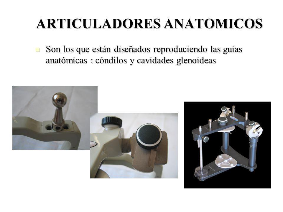 ARTICULADORES ANATOMICOS